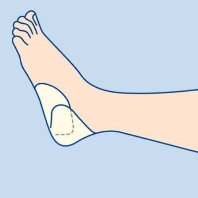 To eπίθεμα κατάκλισης Hydrocoll® Concave της Hartmann έχει ειδικό σχεδιασμό για τέλεια εφαρμογή στην πτέρνα και τον αγκώνα