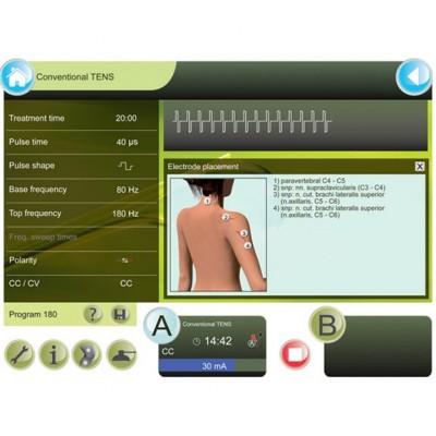 Το GTS 2 διαθέτει λεπτομερείς πληροφορίες για τις παραμέτρους της θεραπείας και για την τοποθέτηση των ηλεκτροδίων